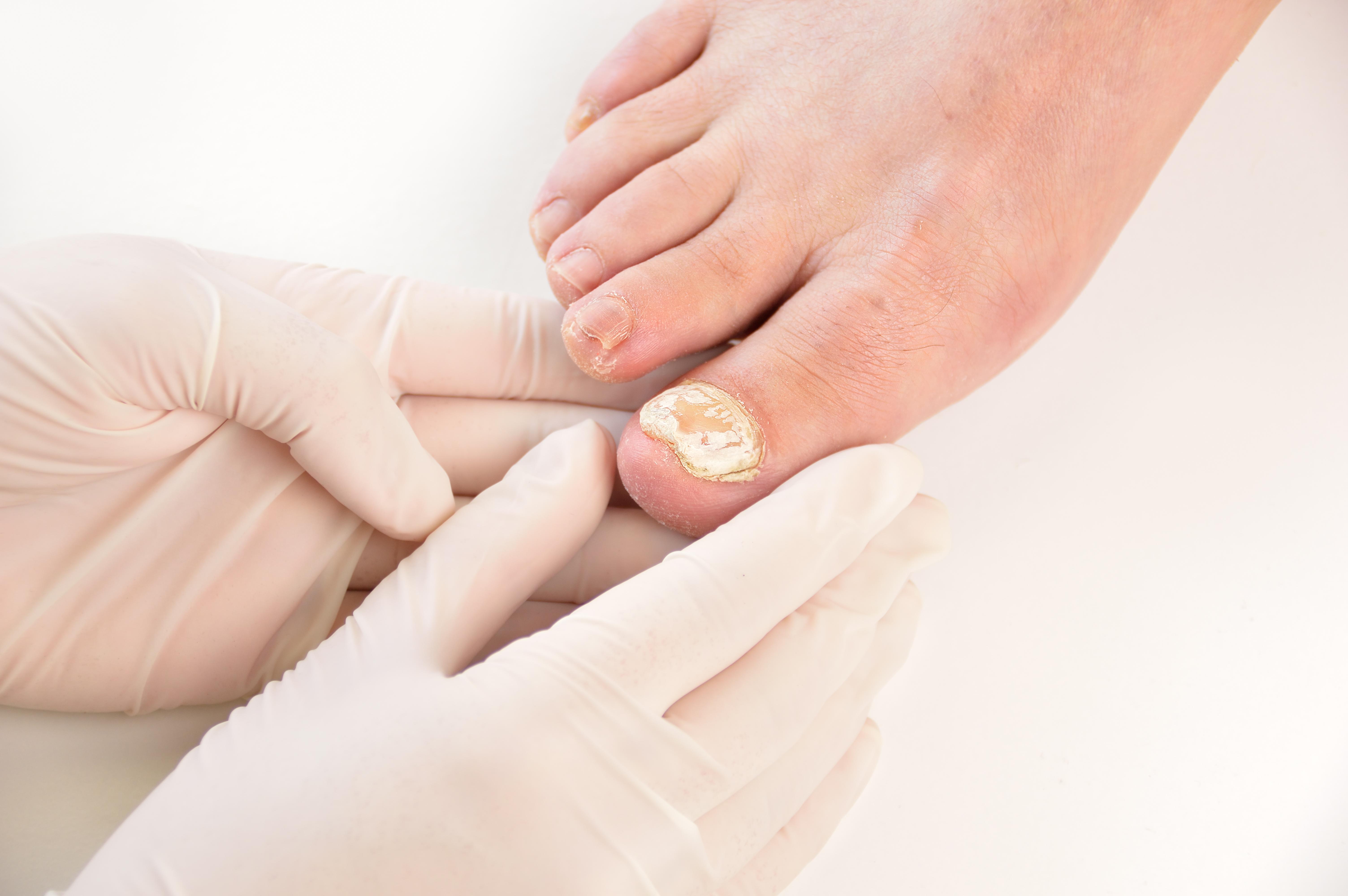 Toenail/Foot Fungus - Vermont Urgent Care
