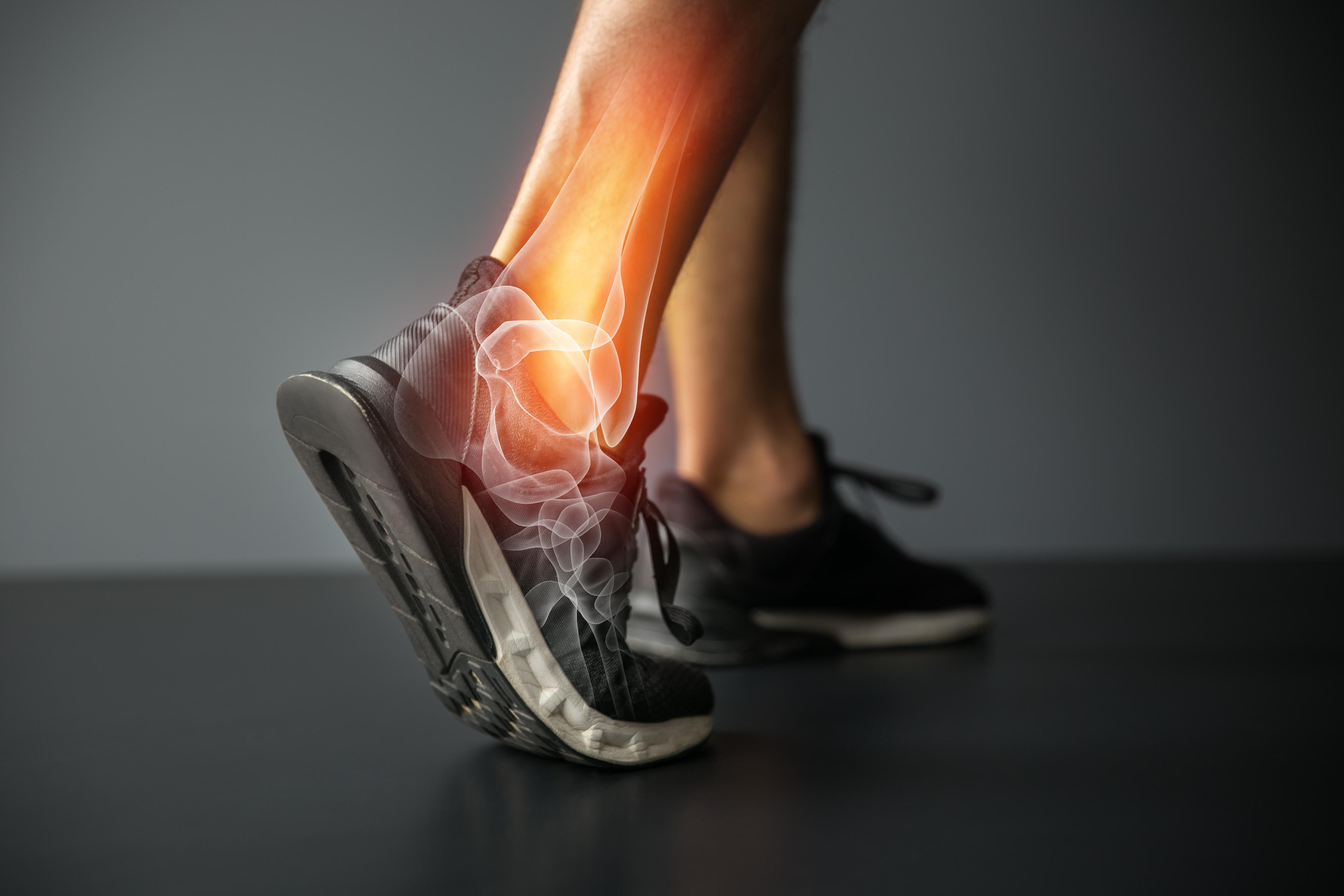 vermont urgent care ankle sprain